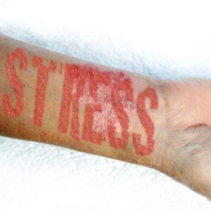stress-lineabio360